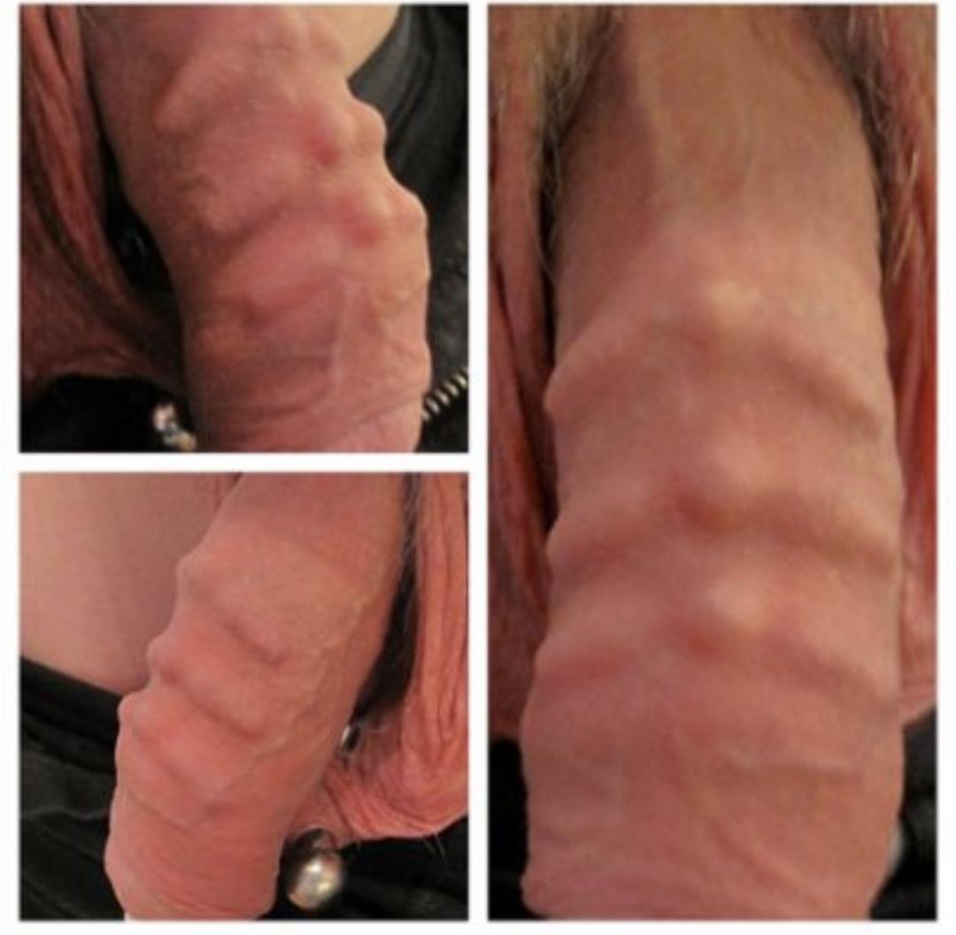 Genital Beading