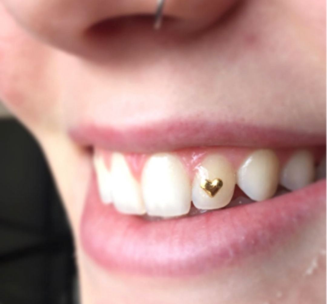 Tooth Gems Now Available! - Forever Inksanity - Tattoos & Body Piercings